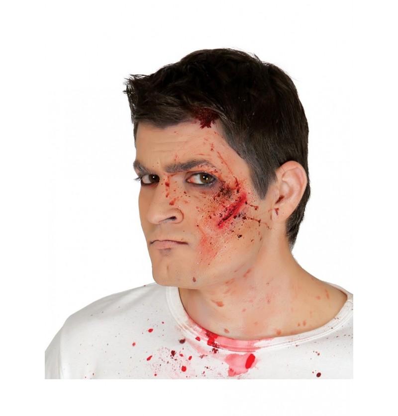 Cicatriz de pelea
